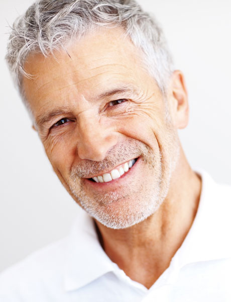 Best-Teeth-Whitening
